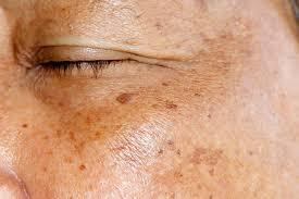 Common types of hyperpigmentation